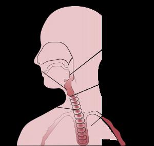 pijnlijke plek in keel